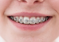 Closeup of smile with metal braces